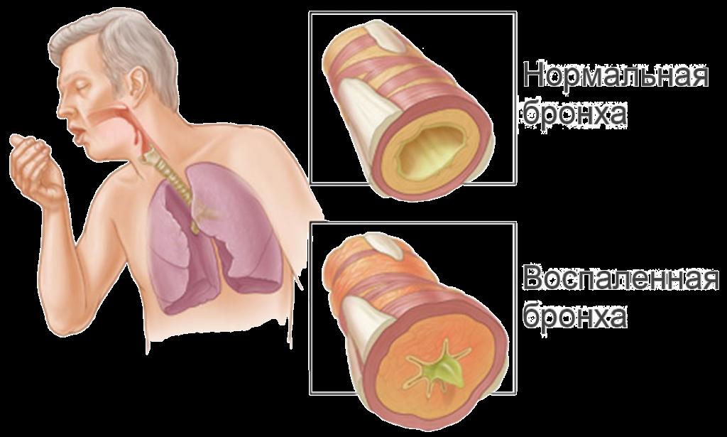 Лечение препаратом асд 2 простатита