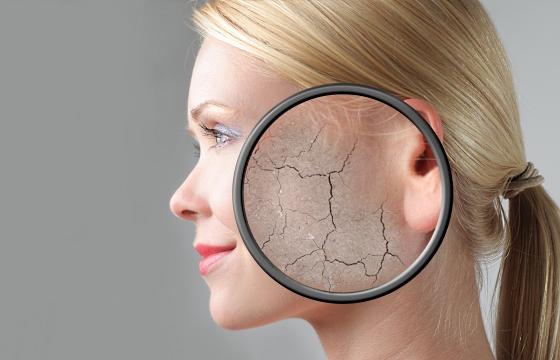 Что делать, если сильно пересыхает кожа лица